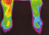 Pain Evaluation of hand and forearm - thermographic image